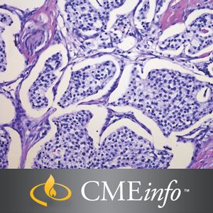 The Brigham and Dana-Farber Board Review in Oncology Brigham and Women's Hospital Board Review